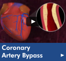 Click here to watch the Coronary Artery Bypass video in our Health Library. This is one of the services our Heart and Vascular Center offers.